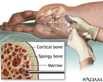 back pain orthopedic doctors