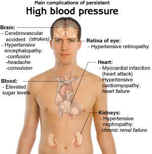 High Blood Pressure May Predict Dementia