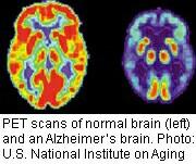 Progress Reported in Predicting Alzheimer's