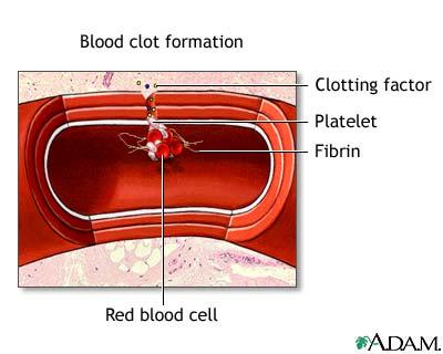 Von Willebrand disease: Overview, Causes