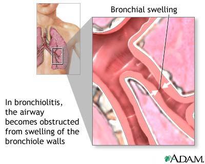 Bronchiolitis : Overview, Causes, & Risk Factors