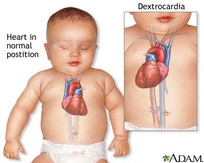 Dextrocardia overview causes amp risk factors health32 com