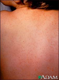 ECHO virus : Overview, Causes, & Risk Factors