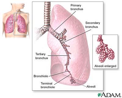 Bronchitis : Overview, Causes, & Risk Factors