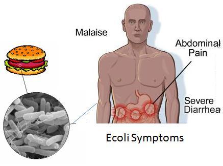 E.coli Symptoms and Treatment