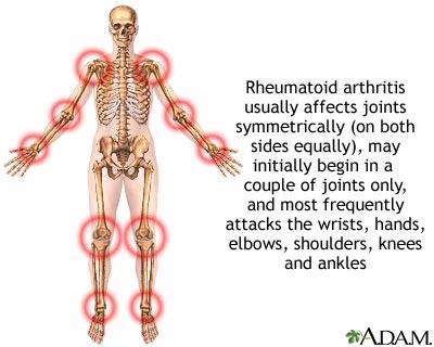 Rheumatoid Arthritis - more discussed
