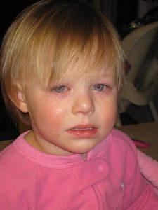 Pink eye in Kids