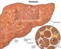 Cirrhosis Overview